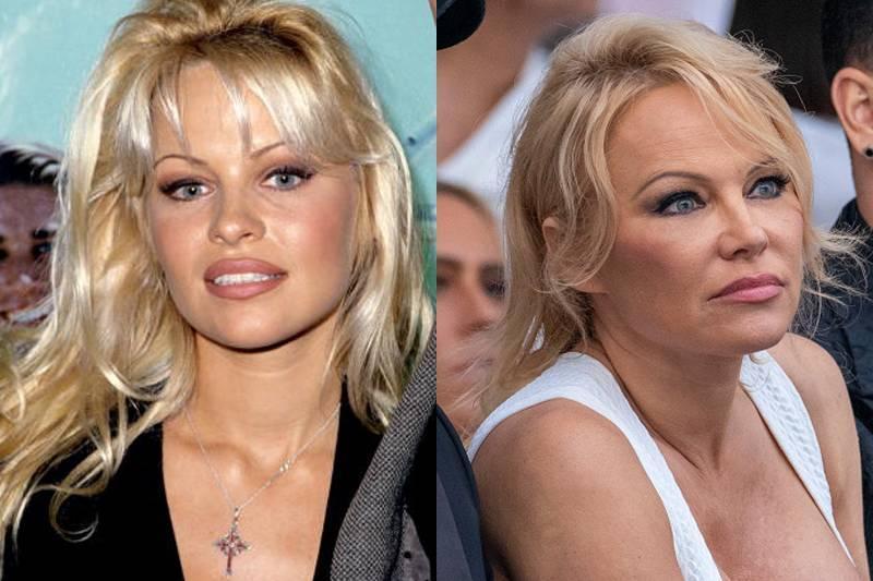 Pamela Anderson (Estimated) $10,500